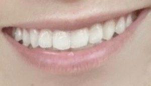 加工アプリを利用した場合の歯の白さ