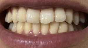 クレスト3D6回目の歯の写真