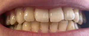 クレスト3Dを7回使用した歯